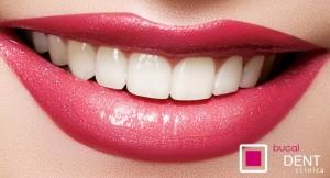 Sonrisa Perfecta!!!! Limpieza con pulido, fluorización, revisión, radiografía
