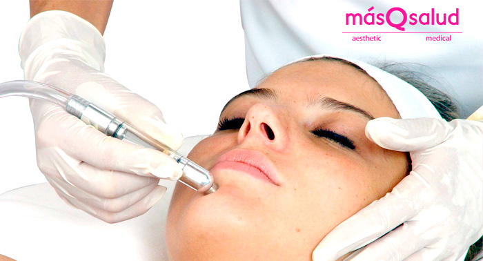 ¡Un rostro perfecto! Elimina las marcas de acné con 1 o 3 Sesiones de Láser CO2 Fraccionado