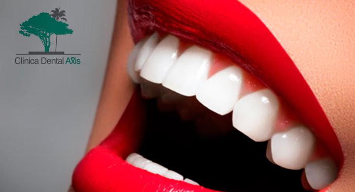 Sonríe a la vida: Limpieza dental, revisión con diagnóstico, radiografía, y pulido de manchas