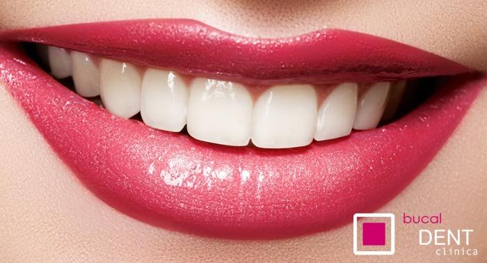 Revisión + Diagnóstico + Limpieza Completa con Flúor + Regalo, en Clínica Dental BucalDent