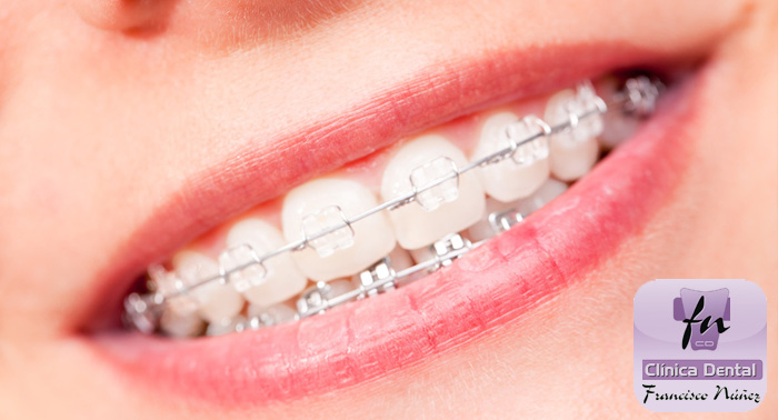 Ortodoncia + Radiografías + Estudio + Brakets Met. o Zafiro + Revisiones 6 meses + Limpieza