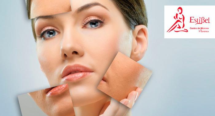 Tratamiento Facial de Mesoterapia con Acido Hialurónico y Vitaminas por sólo 49€.
