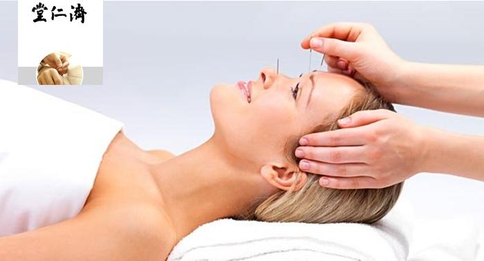 ¡Despídete de las molestias! Sesión de acupuntura