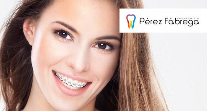 Ortodoncia + Radiografías + Estudio + Brackets Metálicos o Zafiro + 6 Revisiones + Limpieza