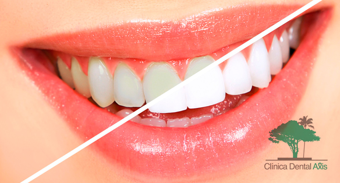 Regala una gran sonrisa: Blanqueamiento Dental LED + Limpieza Bucal con Pulido y Fluorización