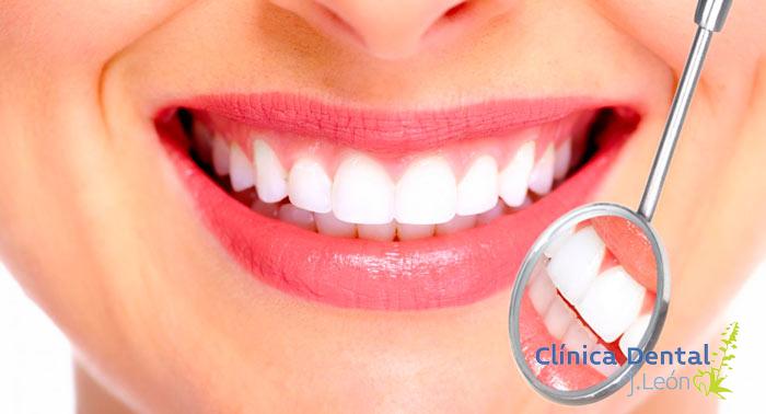 Luce una perfecta sonrisa: 1 o 2 Limpiezas dentales con limpieza profunda o con blanqueamiento
