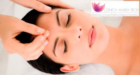 Salud y belleza: Tratamiento Lifting Facial con Acupuntura en Clínica María Ríos
