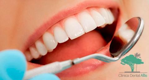 Sonríe a la vida: Limpieza dental, revisión con diagnóstico, radiografía y pulido de manchas