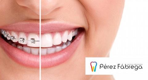 Ortodoncia + Radiografías + Estudio + Brackets Metálicos-Invisalign® + 3 Revisiones + Limpieza