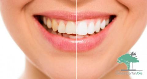 ¡Brilla con tu sonrisa! Blanqueamiento Dental LED + Limpieza Bucal con Pulido y Fluorización